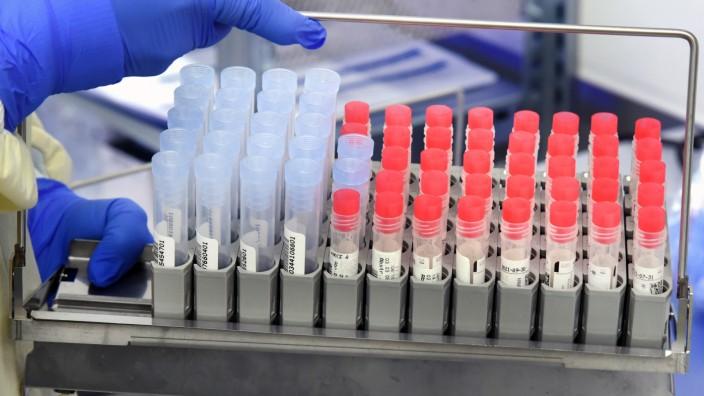 Diagnostik von SARS-CoV-2 und Virusvarianten
