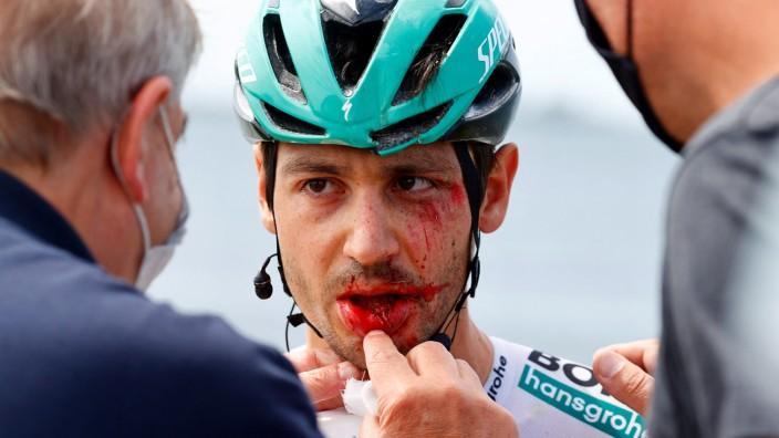 Unfall von Radprofi Buchmann: Gezeichnet: Emanuel Buchmann muss den Giro d'Italia nach einem Massensturz auf der 15. Etappe aufgeben.