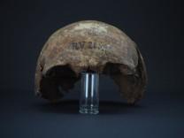 Krankheitserreger: Pest suchte Menschen schon vor 5000 Jahren heim