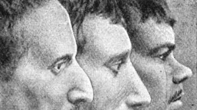 Frage der Woche: Zeigen Verbrecher besondere Merkmale? Eine französische Aufnahme aus dem Jahre 1901.