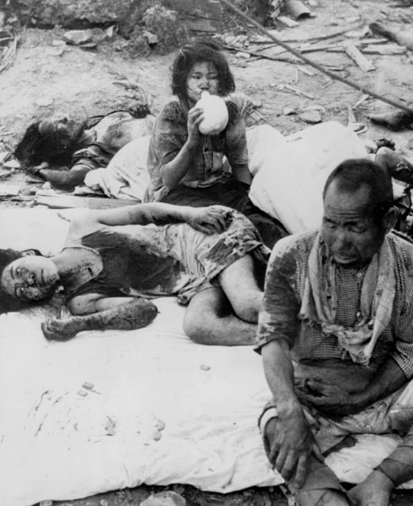 Verletzte nach dem Atombombenabwurf auf Hiroshima, 1945