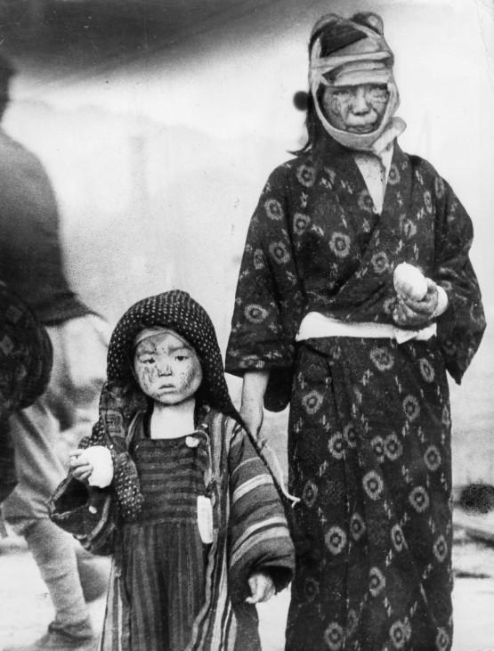 Opfer von Hiroshima